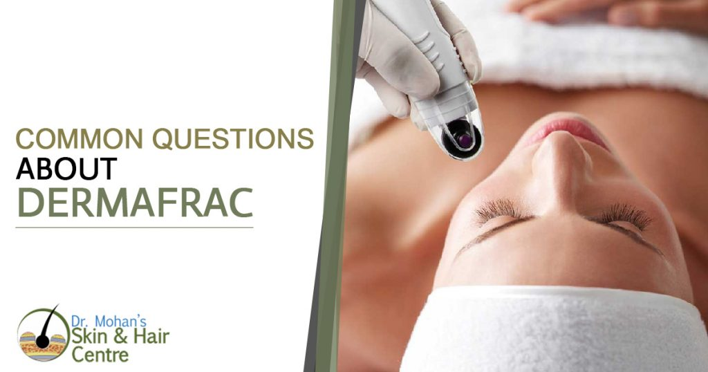 Common Questions about DermaFrac