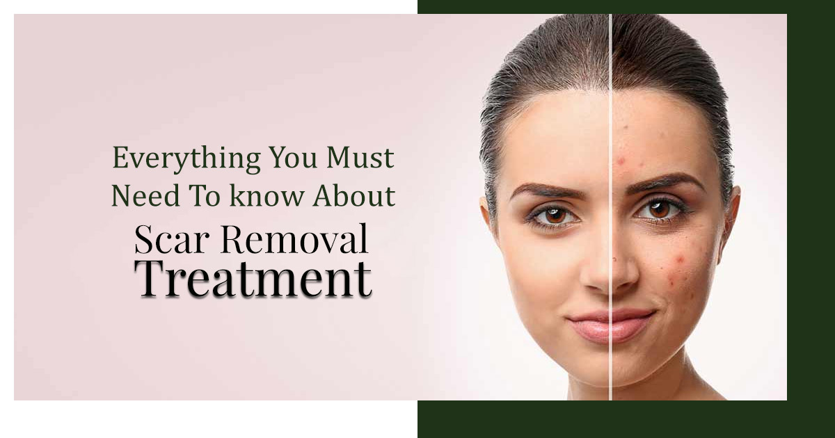 Everything-you-must-need-to-know-about-Scar-Removal-Treatment.jpg
