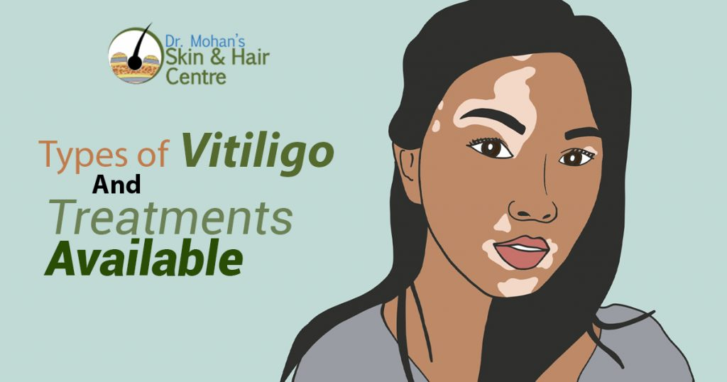 Types of Vitiligo And Treatments Available