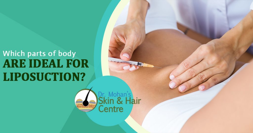 Which parts of body are ideal for liposuction