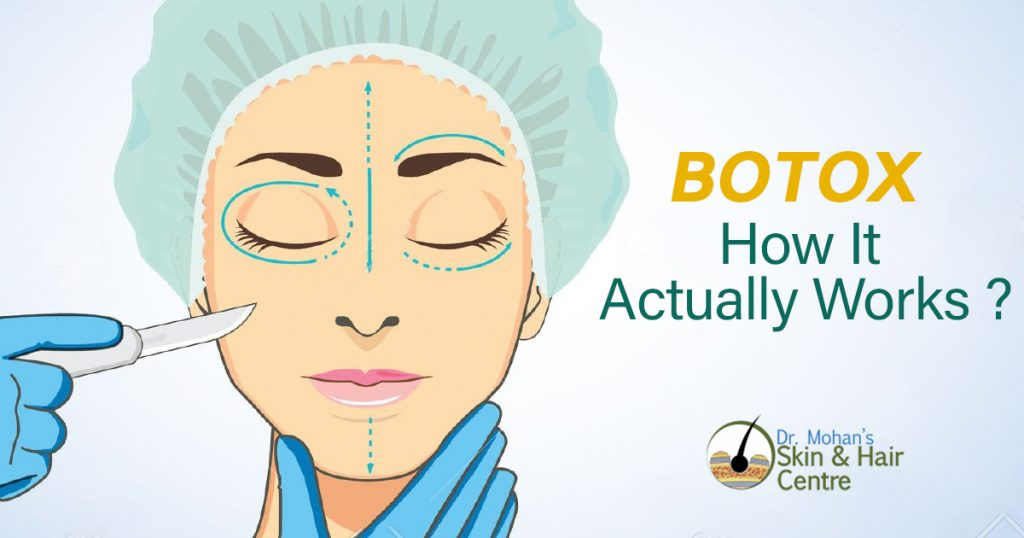 Botox How It Actually Works