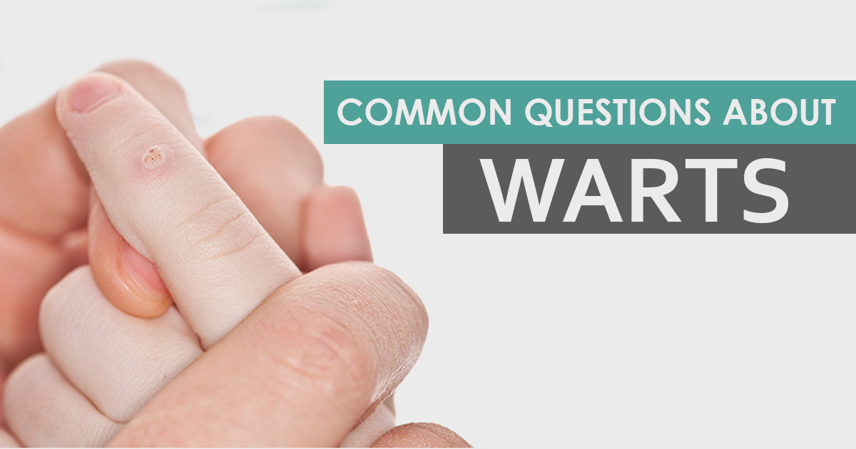 Common Questions about WARTS