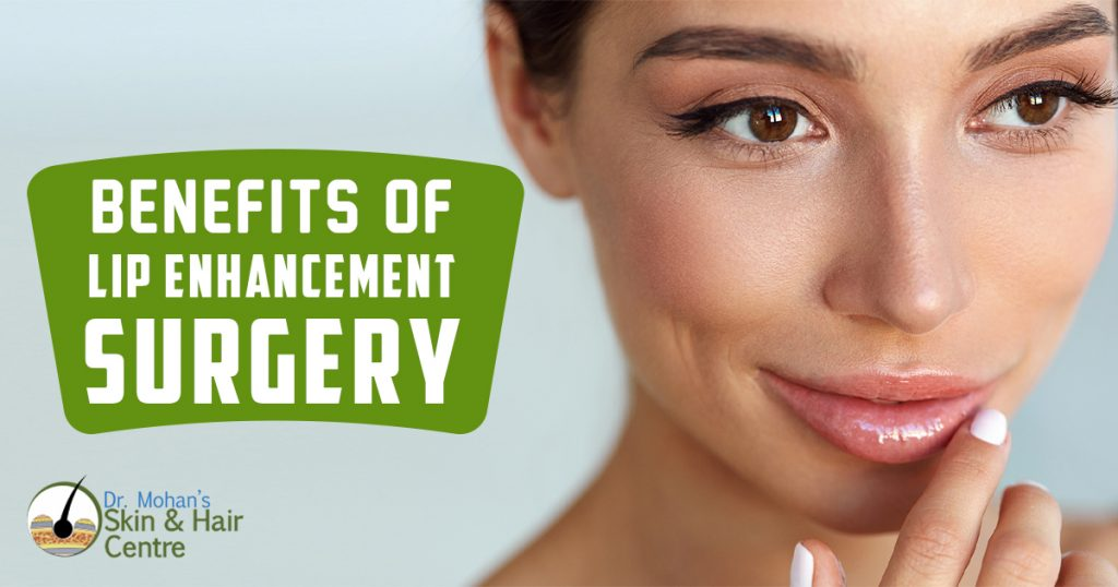 Benefits of Lip Enhancement Surgery