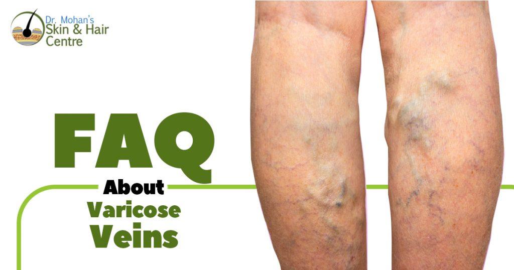 FAQ About Varicose Veins