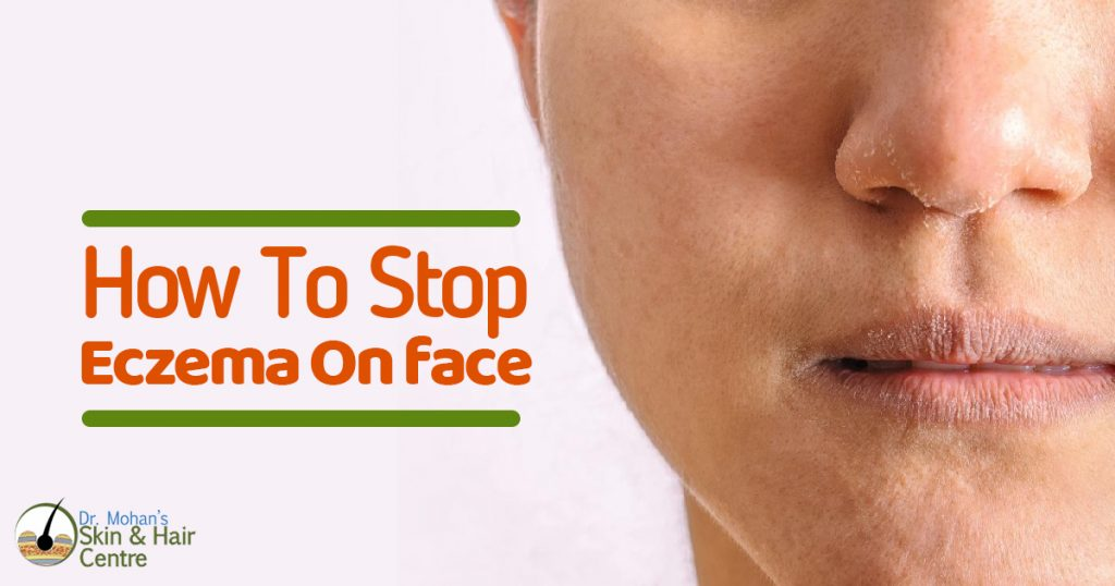 How to stop eczema on face