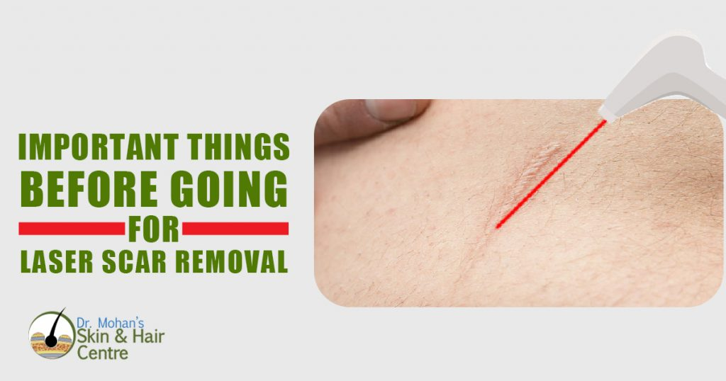 Important Things Before Going for Laser Scar Removal