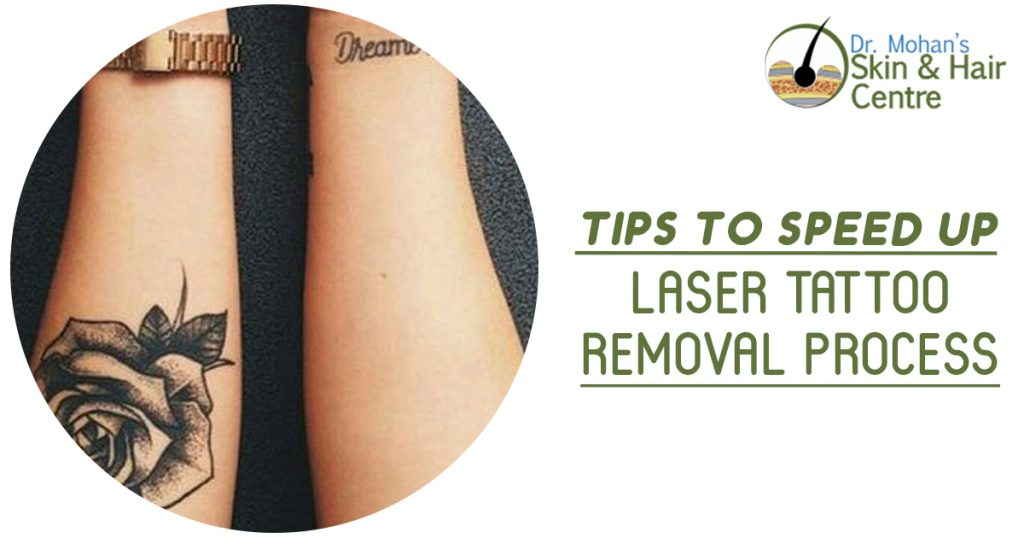 Tips to speed up laser tattoo removal process