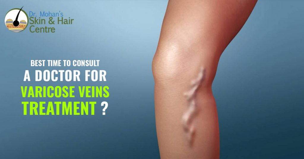 Best time to consult a doctor for varicose veins treatment