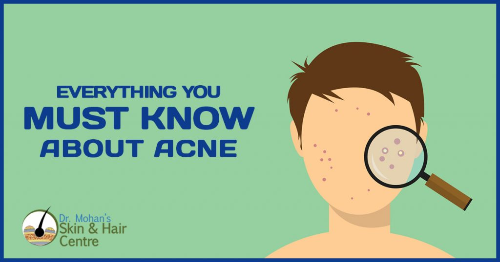 Everything you must know about Acne