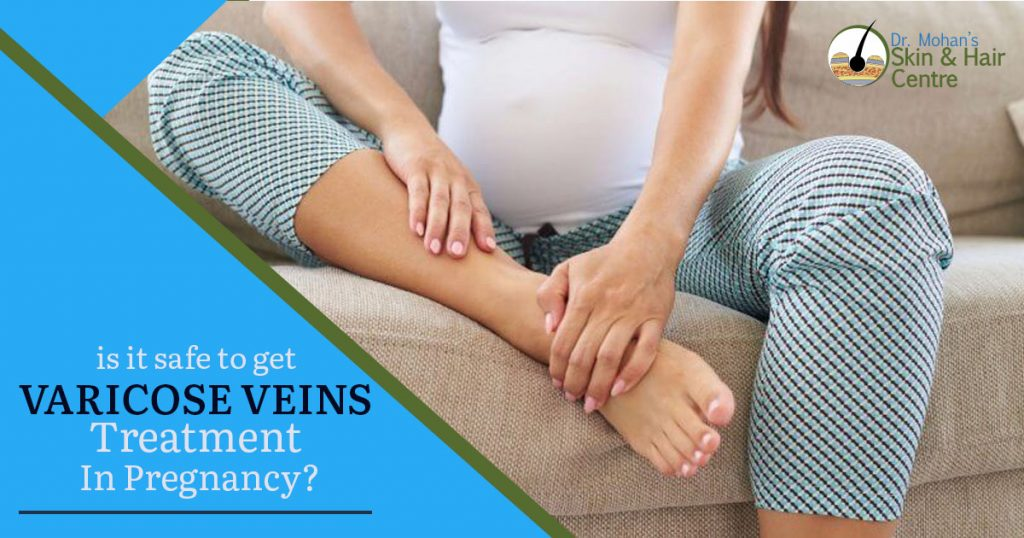 is it safe to get varicose veins treatment in pregnancy