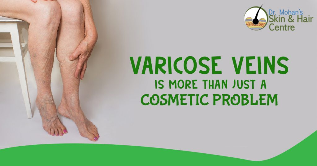 Varicose Veins is more than just a cosmetic problem