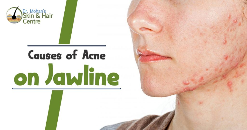 Causes of acne on Jawline