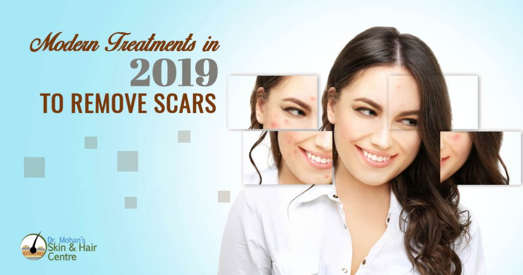Modern Treatmens in 2019 to remove scars
