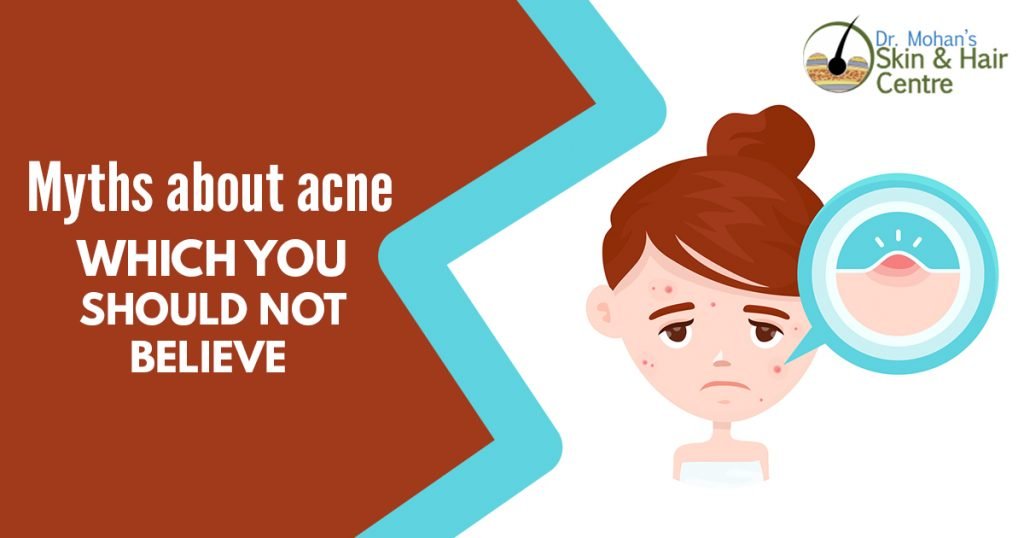 Myths about acne which you should not believe