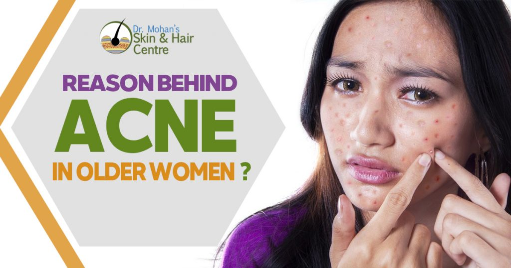 Reason Behind acne in Older women