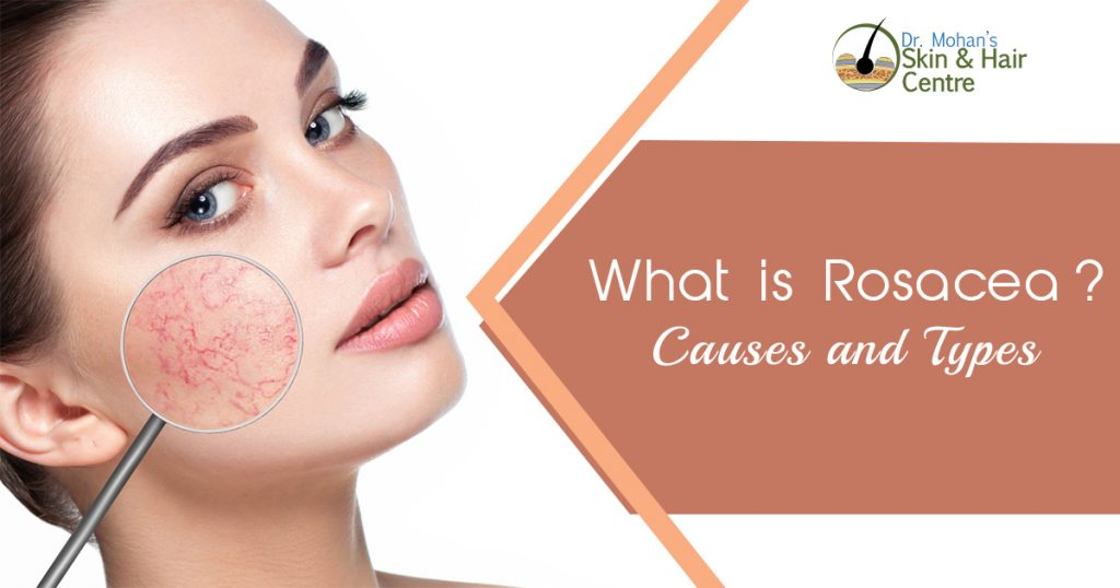 What is Rosacea - Causes and Types
