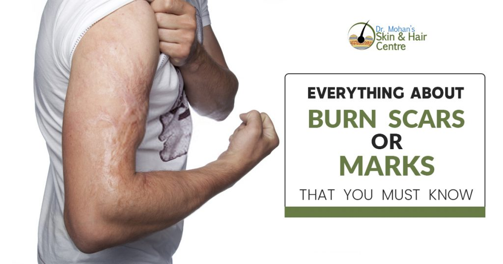 Everything About Burn Scars or Marks that you must know