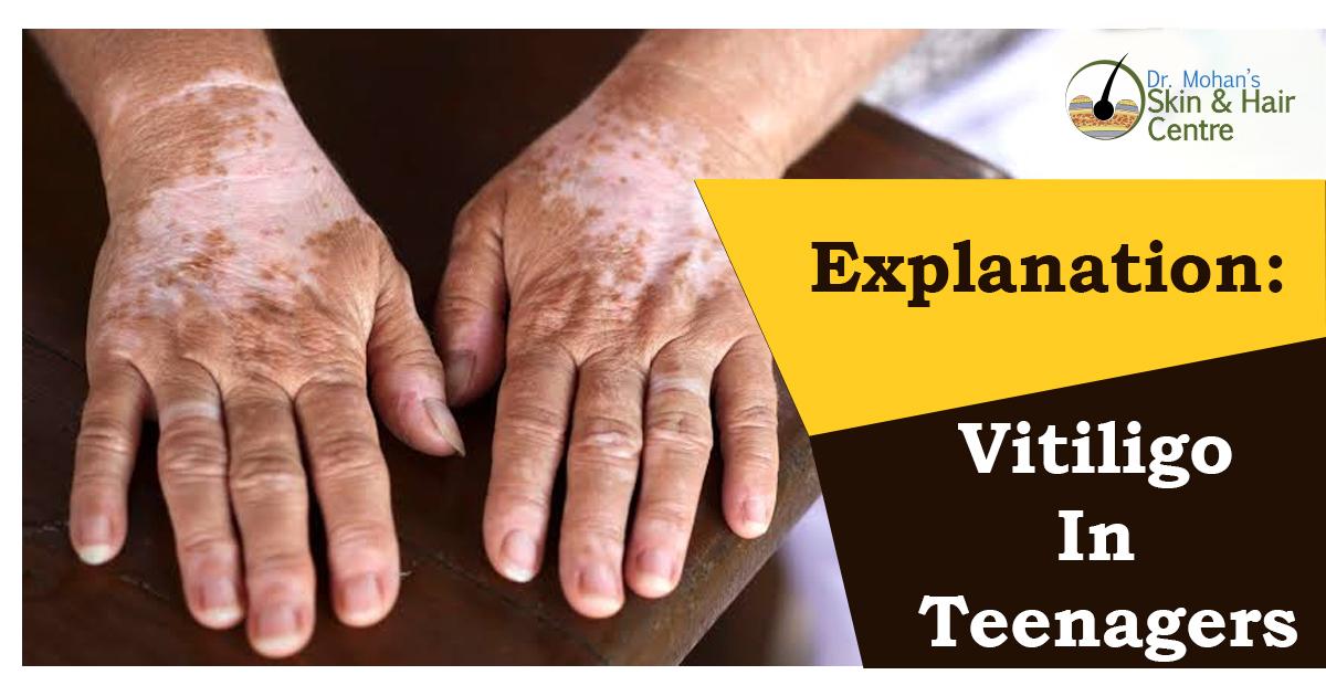 Explanation Of Vitiligo In Teenagers