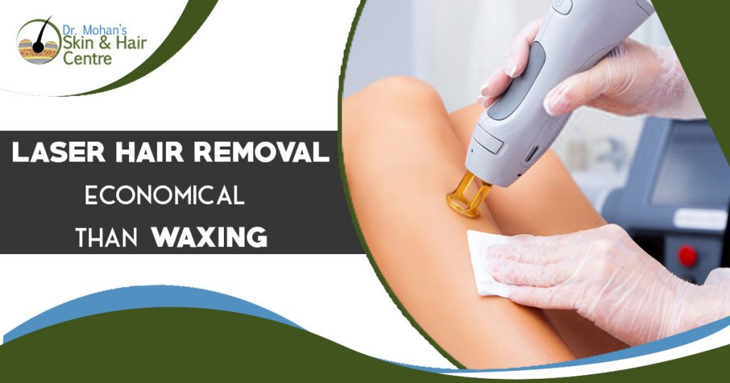 Laser hair removal economical than waxing