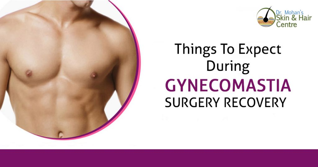 Things to expect during gynecomastia surgery recovery