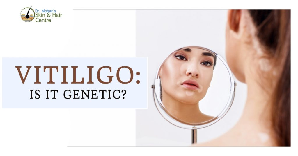 Vitiligo is it genetic