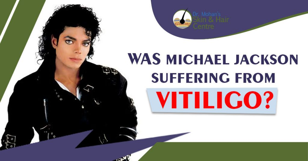Was Michael Jackson Suffering From Vitiligo
