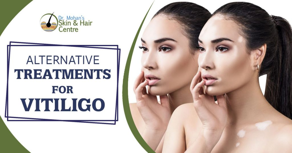 Alternative Treatments for Vitiligo