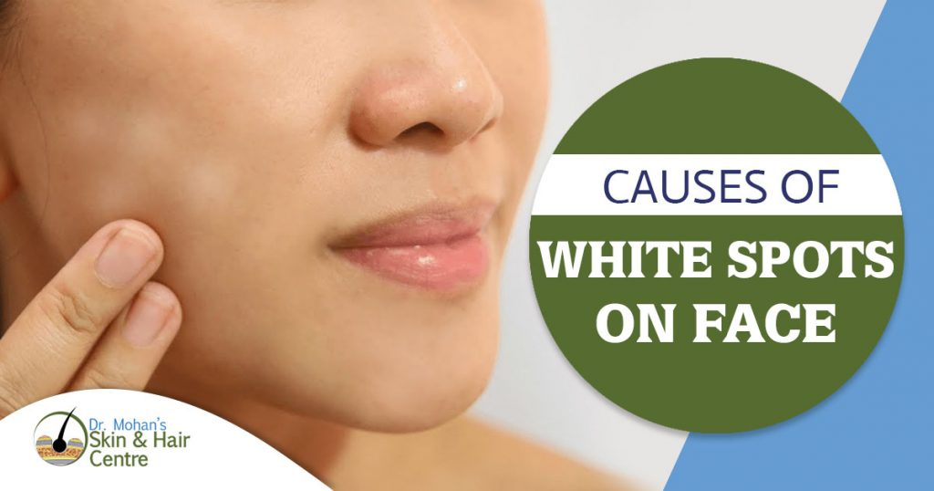 Causes of white spots on face