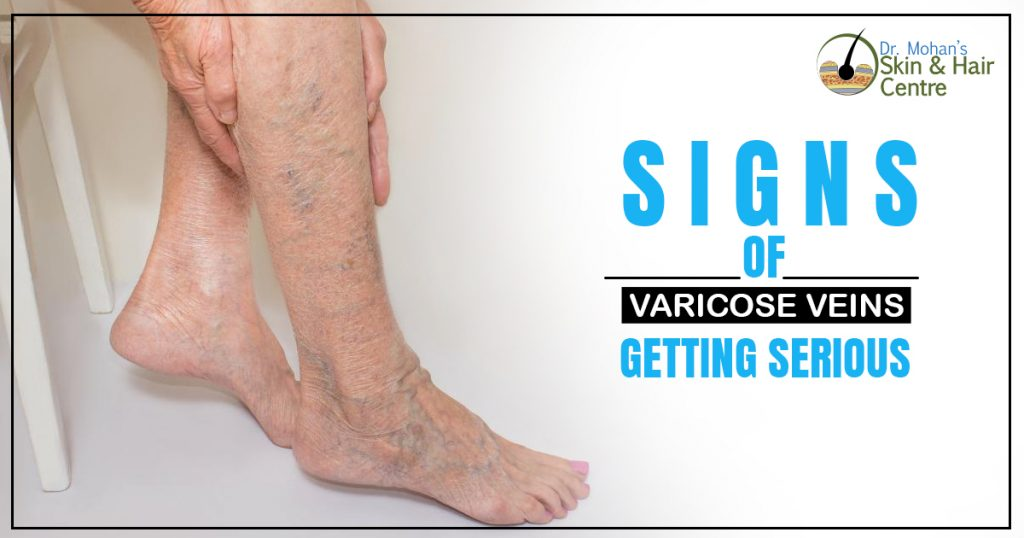 Signs of Varicose Veins Getting Serious
