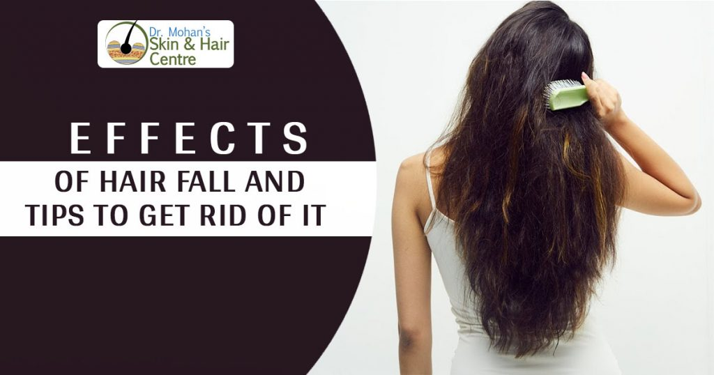 Effects of Hair fall and tips to get rid of it