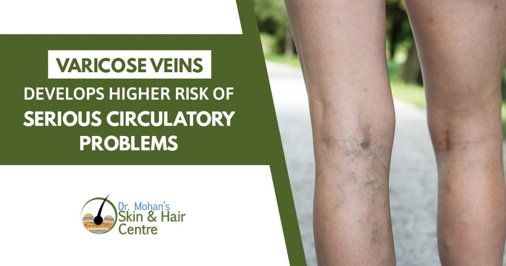 Varicose Veins Develops Higher Risk of Serious Circulatory Problems