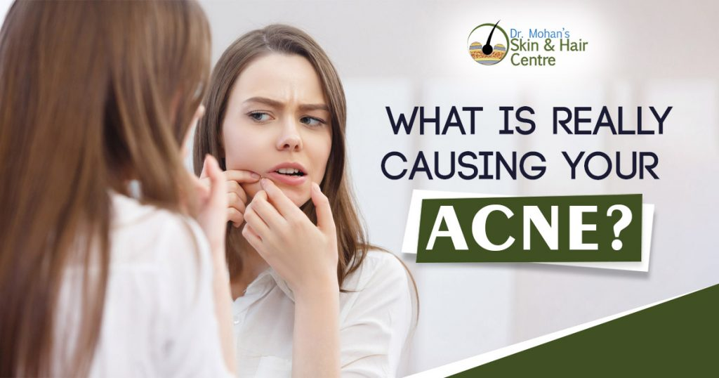 What is really causing your Acne