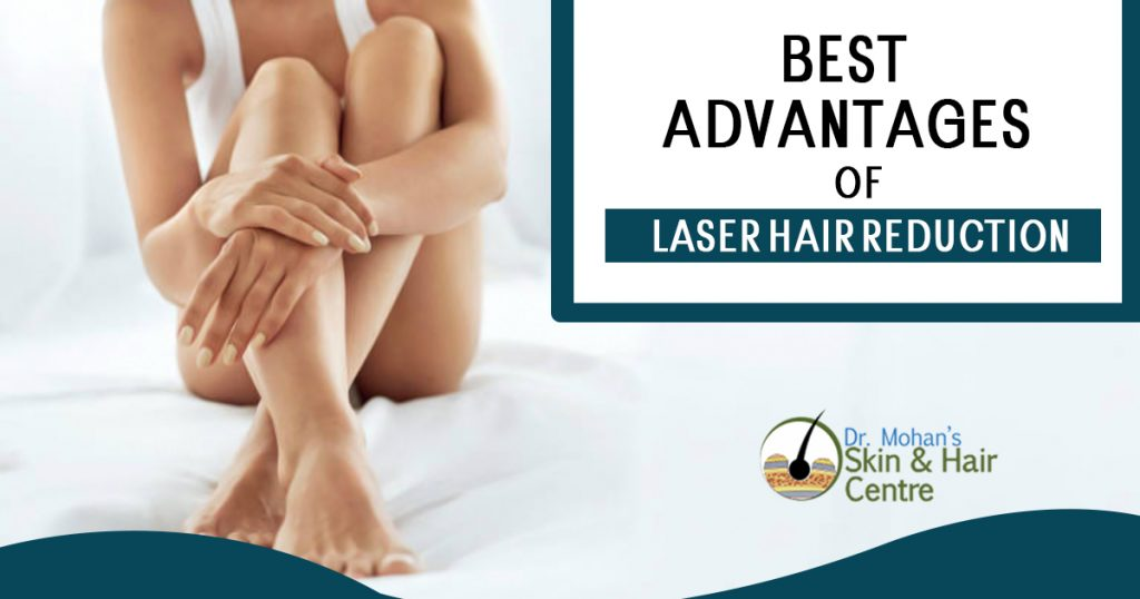 Best advantages of laser hair reduction