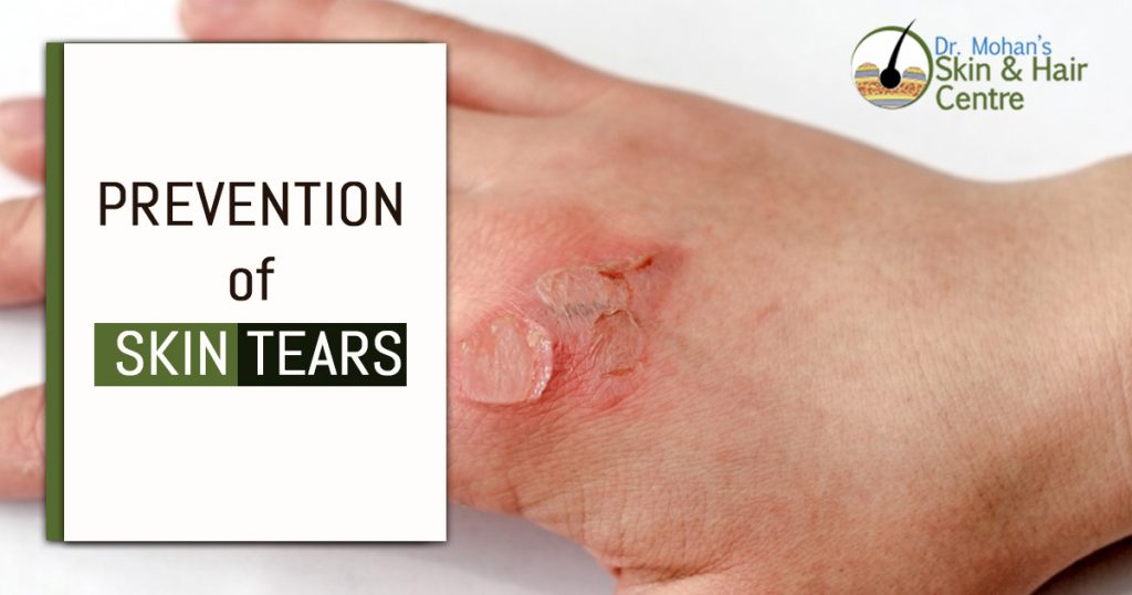 Prevention of Skin Tears