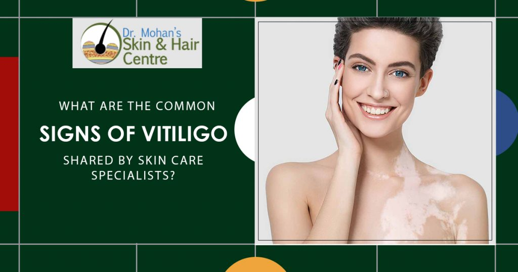 signs of Vitiligo shared by skin care specialists